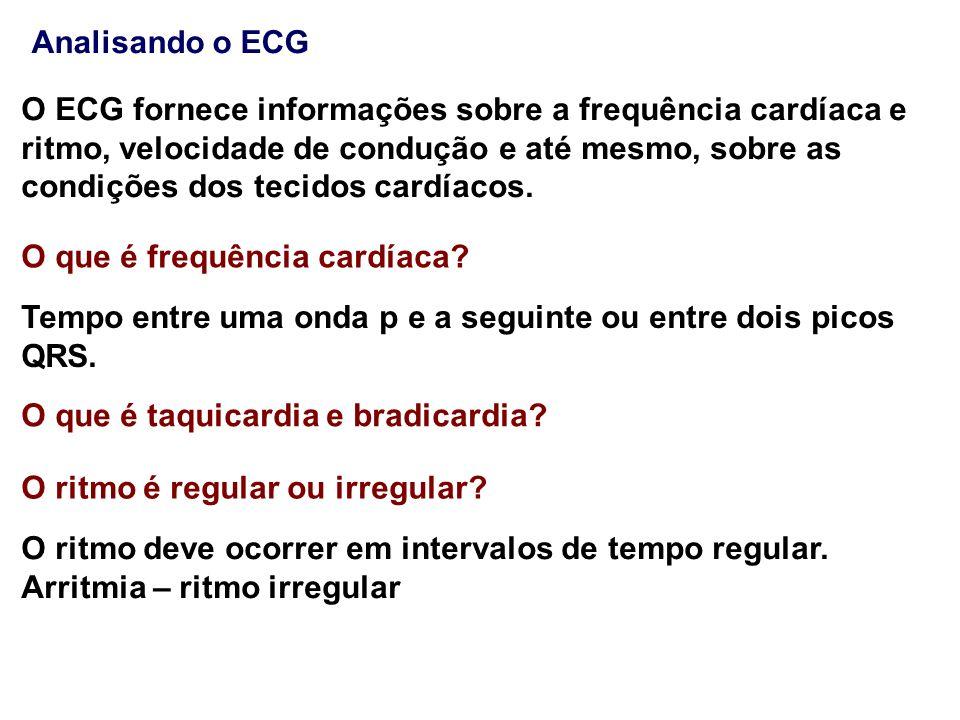 O ECG fornece informações sobre a frequência cardíaca e ritmo, velocidade de condução e até mesmo, sobre as condições dos tecidos cardíacos. O que é f