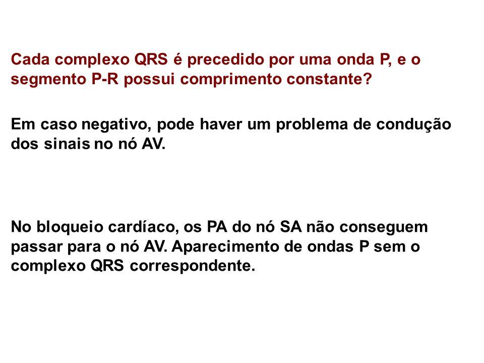 Cada complexo QRS é precedido por uma onda P, e o segmento P-R possui comprimento constante? Em caso negativo, pode haver um problema de condução dos