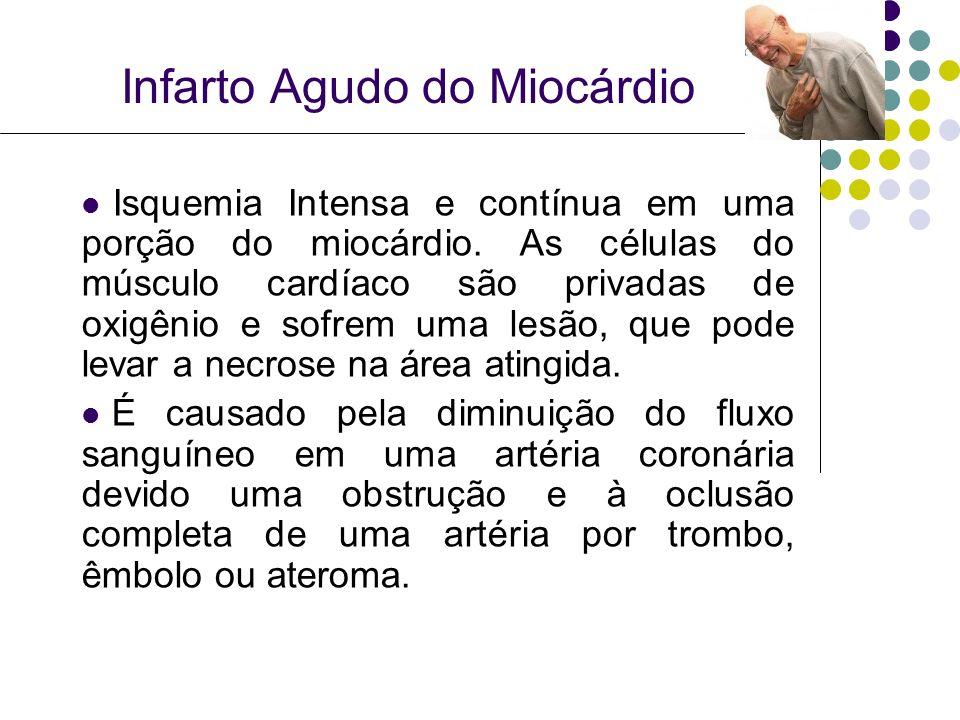 Infarto Agudo do Miocárdio Isquemia Intensa e contínua em uma porção do miocárdio.
