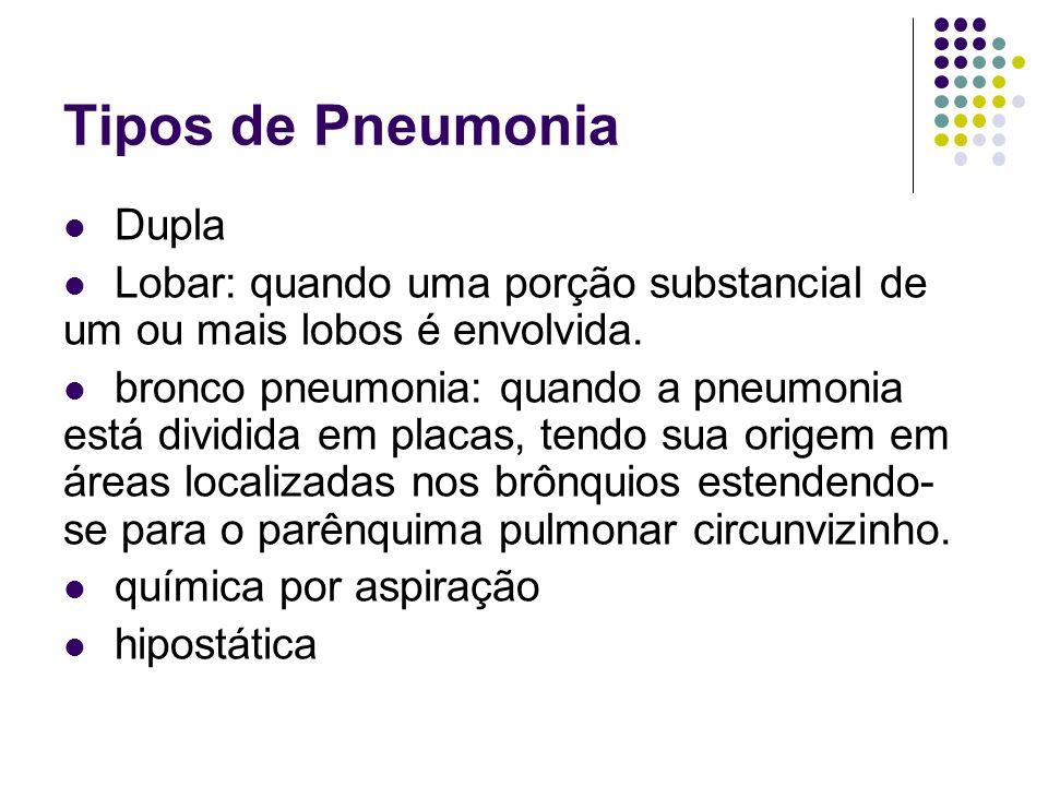 Tipos de Pneumonia Dupla Lobar: quando uma porção substancial de um ou mais lobos é envolvida. bronco pneumonia: quando a pneumonia está dividida em p