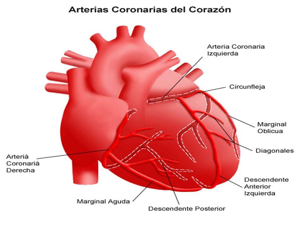 Aterosclerose Coronariana É a deposição de placas de gordura na camada interna dos vasos causando o estreitamento progressivo da luz do mesmo.