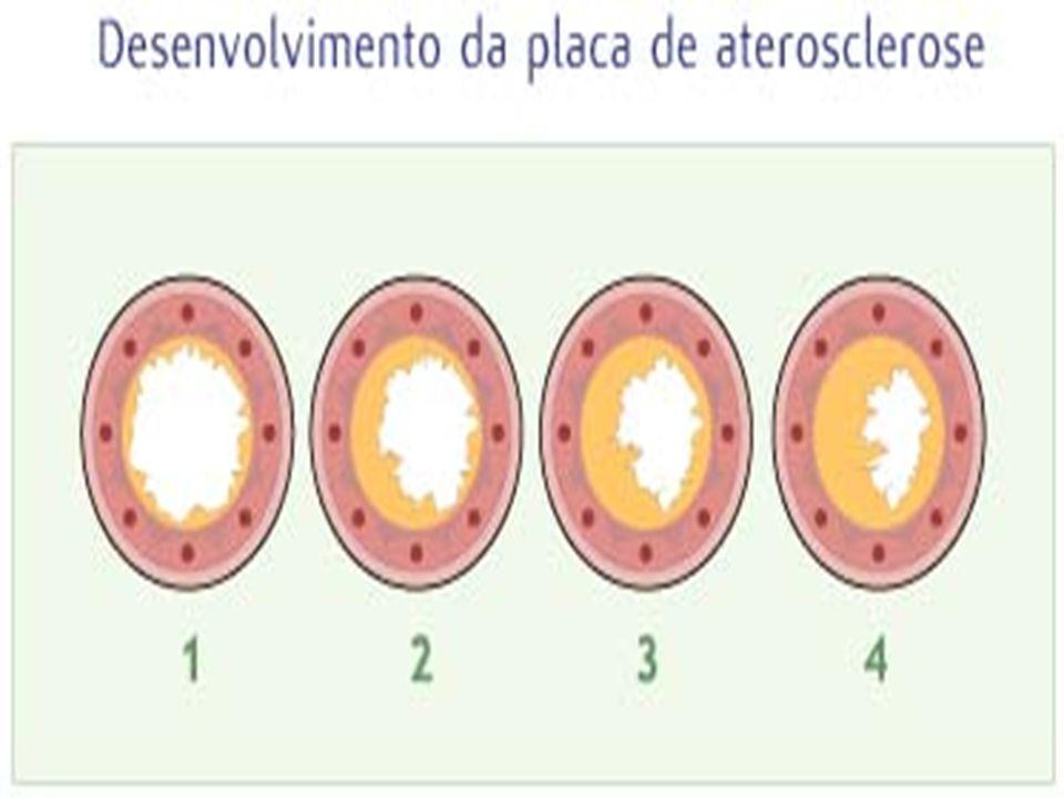Fatores de Risco Idade e sexo Dieta e colesterol Hipertensão arterial Hereditariedade Diabetes Mellitus Tabagismo Sedentarismo Obesidade Estresse