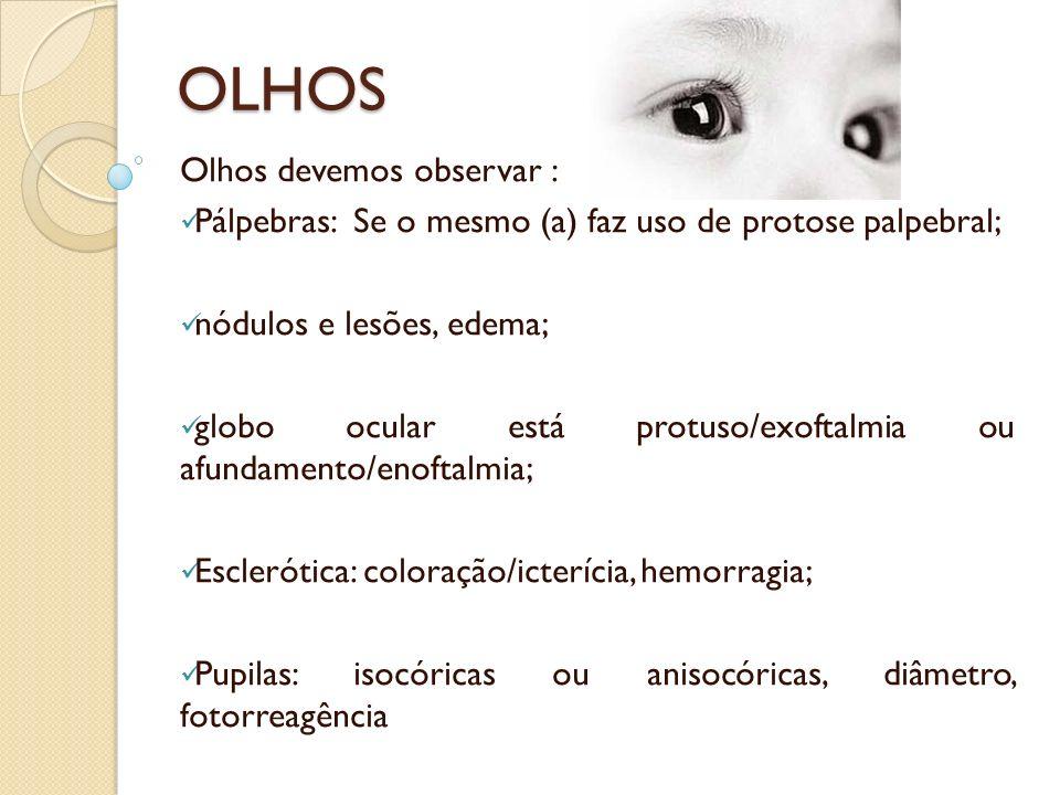 OLHOS Olhos devemos observar : Pálpebras: Se o mesmo (a) faz uso de protose palpebral; nódulos e lesões, edema; globo ocular está protuso/exoftalmia o
