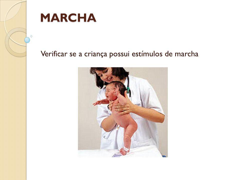 MARCHA Verificar se a criança possui estímulos de marcha