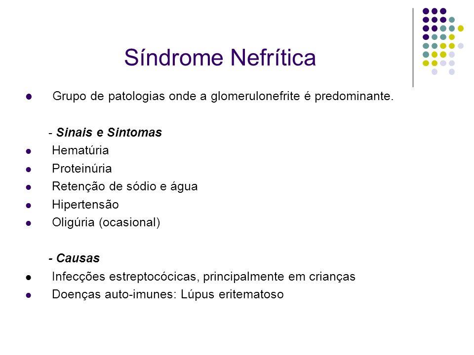Síndrome Nefrítica Grupo de patologias onde a glomerulonefrite é predominante. - Sinais e Sintomas Hematúria Proteinúria Retenção de sódio e água Hipe