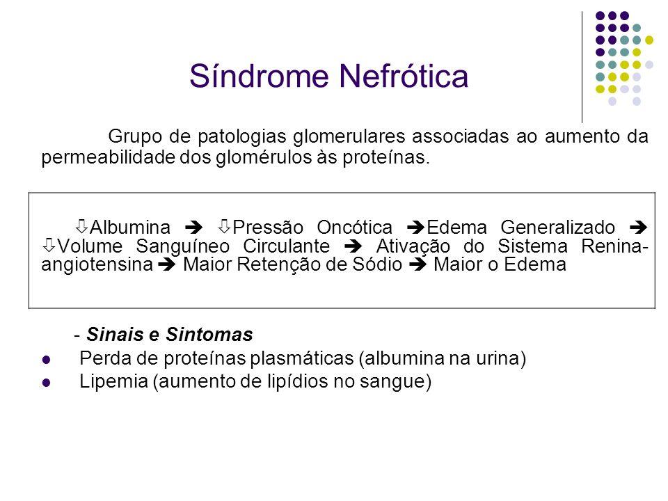 Síndrome Nefrótica Grupo de patologias glomerulares associadas ao aumento da permeabilidade dos glomérulos às proteínas. Albumina Pressão Oncótica Ede