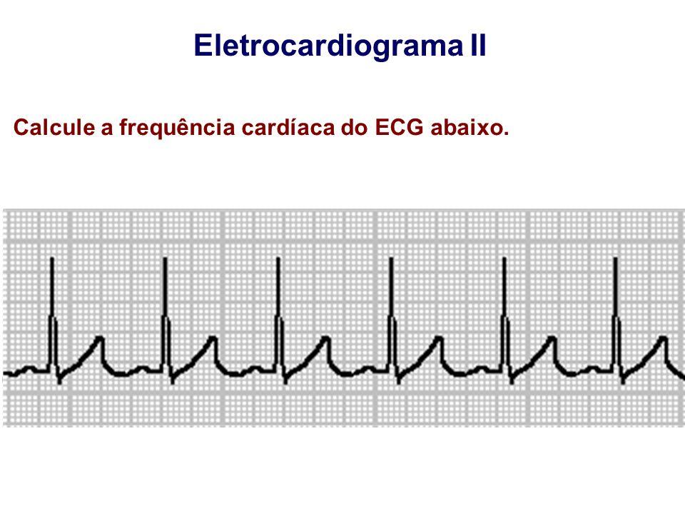 Eletrocardiograma II Calcule a frequência cardíaca do ECG abaixo.