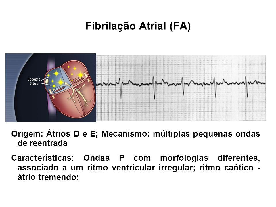 Fibrilação Atrial (FA) Origem: Átrios D e E; Mecanismo: múltiplas pequenas ondas de reentrada Características: Ondas P com morfologias diferentes, ass