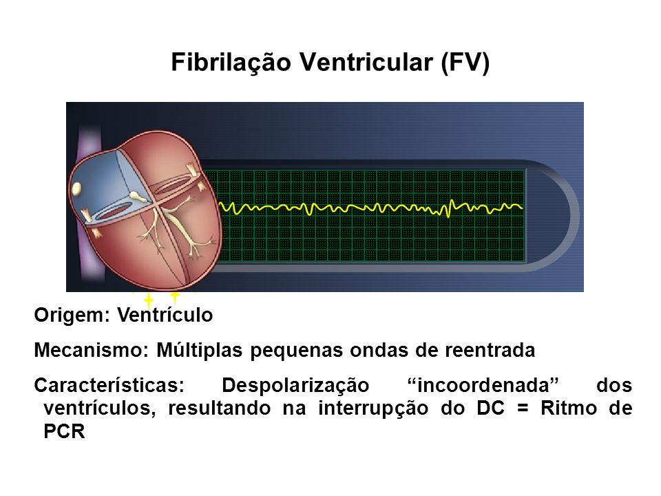 Origem: Ventrículo Mecanismo: Múltiplas pequenas ondas de reentrada Características: Despolarização incoordenada dos ventrículos, resultando na interr