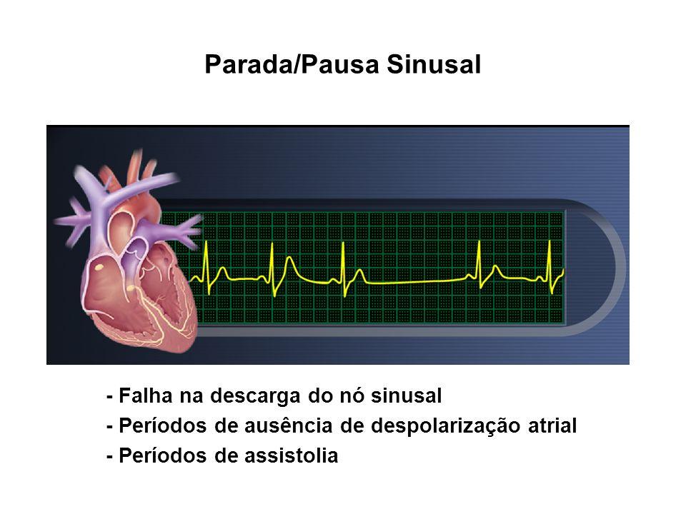- Falha na descarga do nó sinusal - Períodos de ausência de despolarização atrial - Períodos de assistolia Parada/Pausa Sinusal