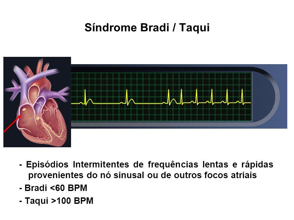 - Episódios Intermitentes de frequências lentas e rápidas provenientes do nó sinusal ou de outros focos atriais - Bradi <60 BPM - Taqui >100 BPM Síndr