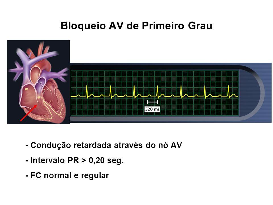 Bloqueio AV de Primeiro Grau - Condução retardada através do nó AV - Intervalo PR > 0,20 seg. - FC normal e regular