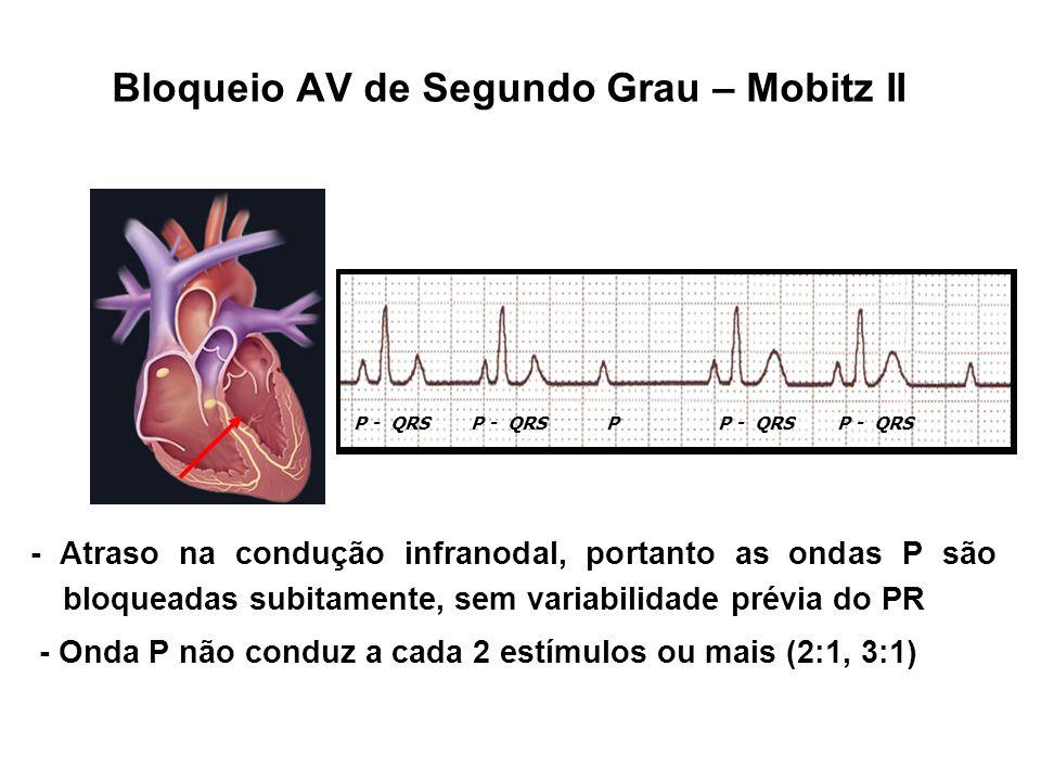 Bloqueio AV de Segundo Grau – Mobitz II - Atraso na condução infranodal, portanto as ondas P são bloqueadas subitamente, sem variabilidade prévia do P