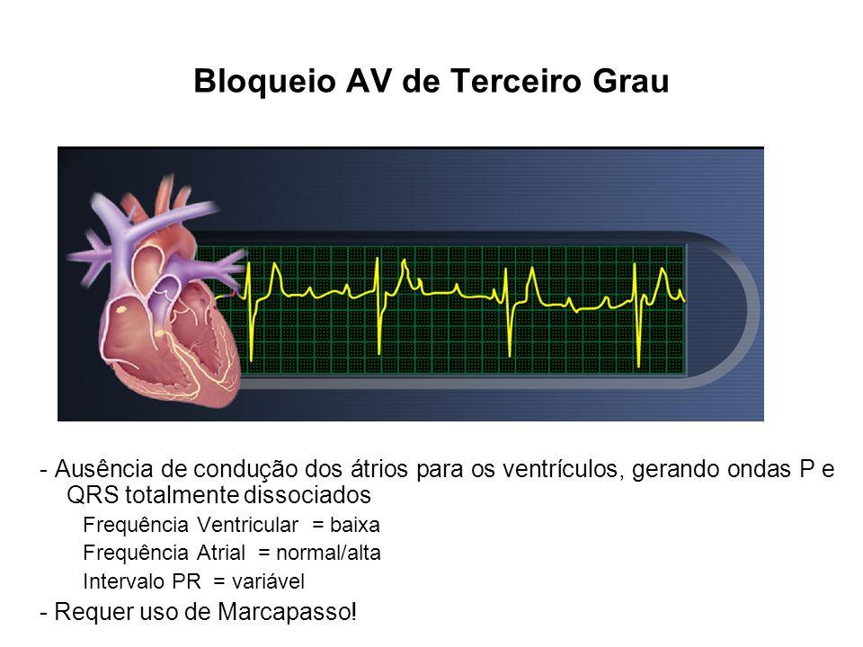 - Ausência de condução dos átrios para os ventrículos, gerando ondas P e QRS totalmente dissociados Frequência Ventricular = baixa Frequência Atrial =