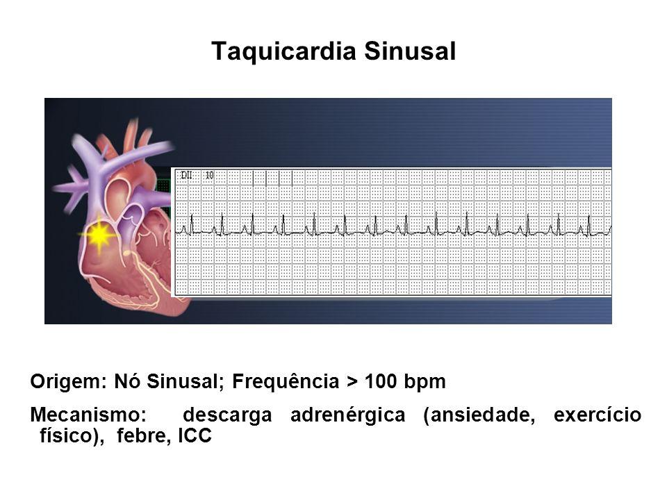 Taquicardia Sinusal Origem: Nó Sinusal; Frequência > 100 bpm Mecanismo: descarga adrenérgica (ansiedade, exercício físico), febre, ICC