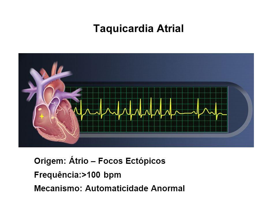 Taquicardia Atrial Origem: Átrio – Focos Ectópicos Frequência:>100 bpm Mecanismo: Automaticidade Anormal