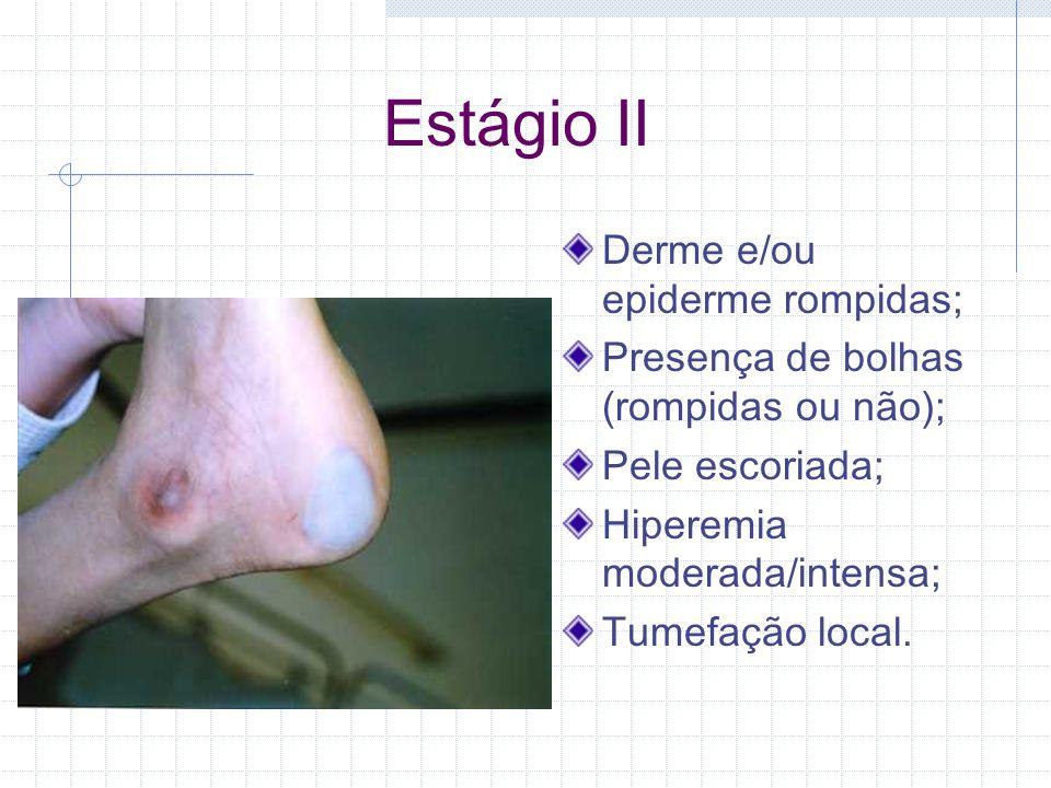 Estágio II Derme e/ou epiderme rompidas; Presença de bolhas (rompidas ou não); Pele escoriada; Hiperemia moderada/intensa; Tumefação local.