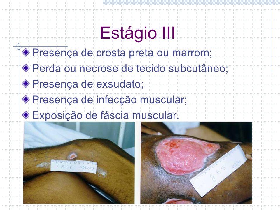 Estágio III Presença de crosta preta ou marrom; Perda ou necrose de tecido subcutâneo; Presença de exsudato; Presença de infecção muscular; Exposição