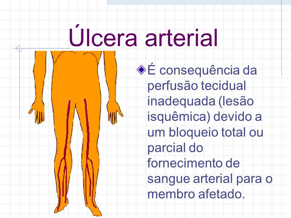 Úlcera arterial É consequência da perfusão tecidual inadequada (lesão isquêmica) devido a um bloqueio total ou parcial do fornecimento de sangue arter