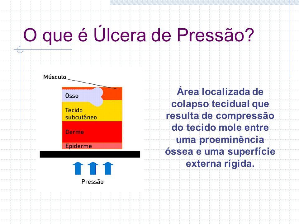 O que é Úlcera de Pressão? Área localizada de colapso tecidual que resulta de compressão do tecido mole entre uma proeminência óssea e uma superfície