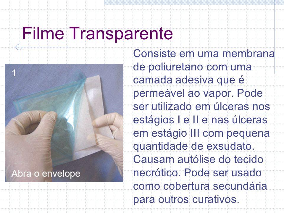 Filme Transparente Consiste em uma membrana de poliuretano com uma camada adesiva que é permeável ao vapor. Pode ser utilizado em úlceras nos estágios
