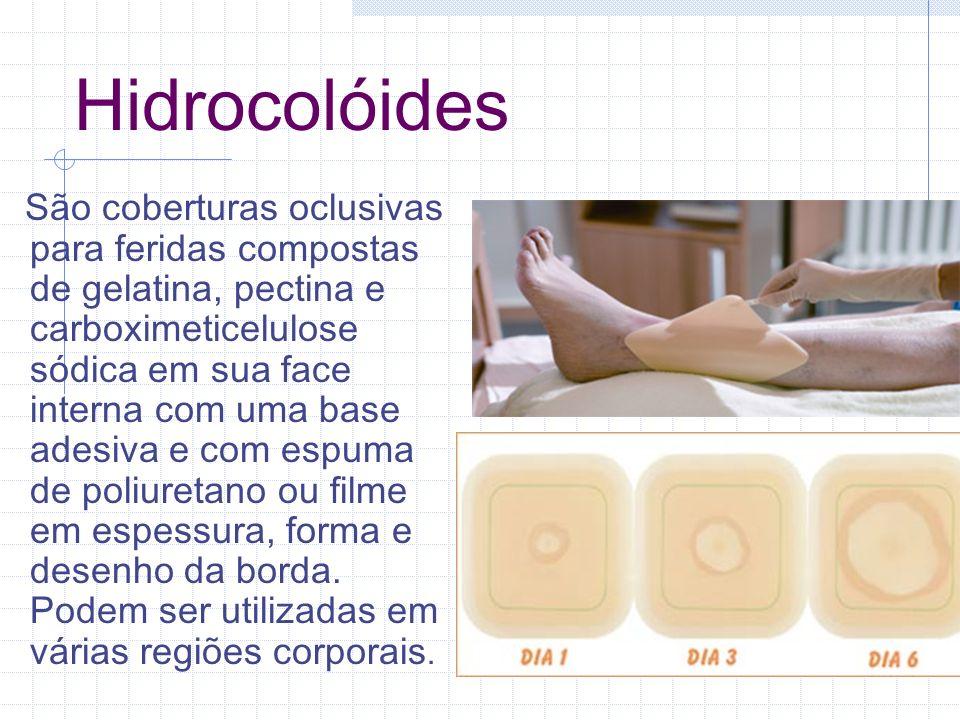 Hidrocolóides São coberturas oclusivas para feridas compostas de gelatina, pectina e carboximeticelulose sódica em sua face interna com uma base adesi