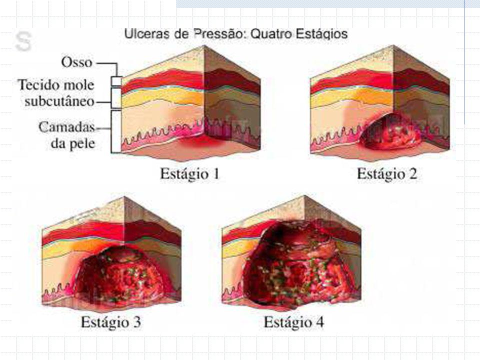 Estágio I Pele íntegra; Hiperemia que não regride após remoção da pressão; Edema discreto; Perda discreta da sensibilidade local; Alteração da perfuração local; Presença de eritema.
