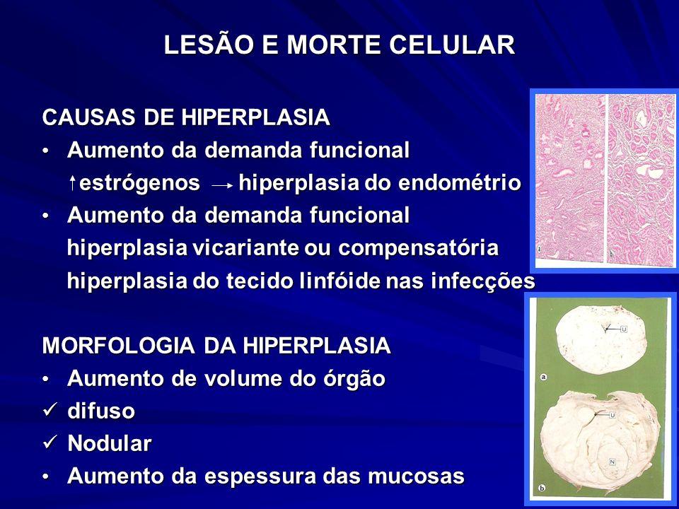 LESÃO E MORTE CELULAR CAUSAS DE HIPERPLASIA Aumento da demanda funcional Aumento da demanda funcional estrógenos hiperplasia do endométrio estrógenos