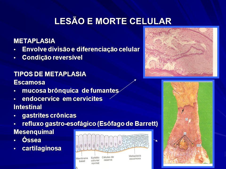 METAPLASIA Envolve divisão e diferenciação celular Envolve divisão e diferenciação celular Condição reversível Condição reversível TIPOS DE METAPLASIA