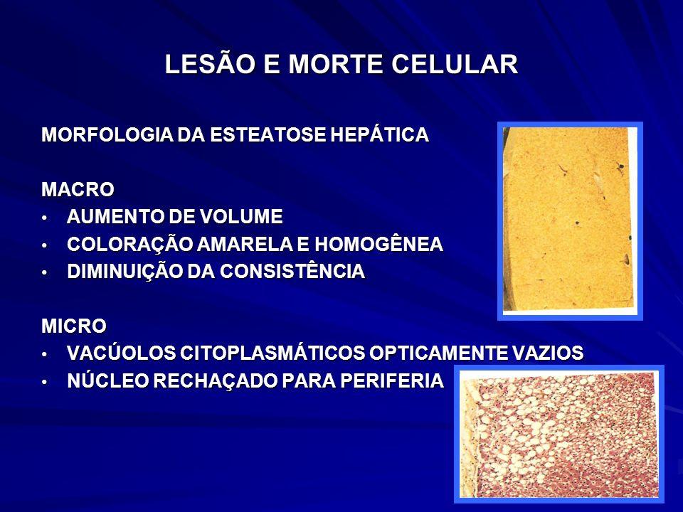 LESÃO E MORTE CELULAR MORFOLOGIA DA ESTEATOSE HEPÁTICA MACRO AUMENTO DE VOLUME AUMENTO DE VOLUME COLORAÇÃO AMARELA E HOMOGÊNEA COLORAÇÃO AMARELA E HOM