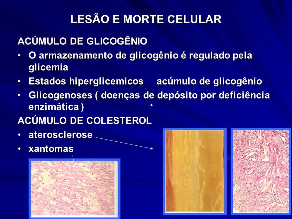 LESÃO E MORTE CELULAR ACÚMULO DE GLICOGÊNIO O armazenamento de glicogênio é regulado pela glicemia O armazenamento de glicogênio é regulado pela glice