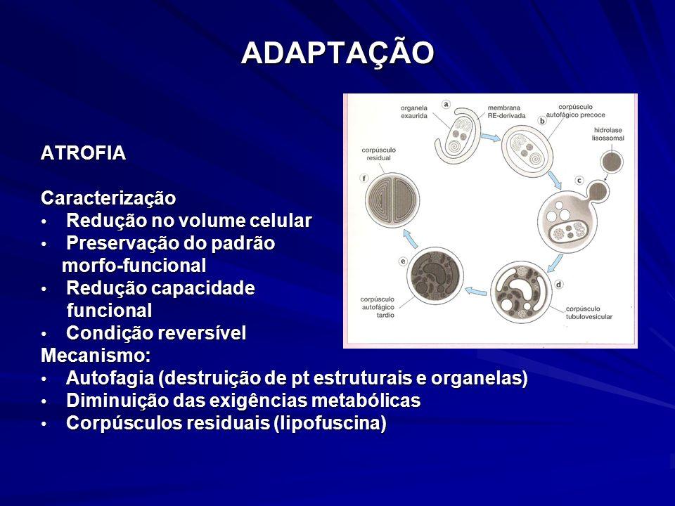 ADAPTAÇÃO CAUSAS DE ATROFIA desuso (atrofia muscular em membro imobilizado) desuso (atrofia muscular em membro imobilizado) redução gradual do suprimento sanguíneo (aterosclerose) redução gradual do suprimento sanguíneo (aterosclerose) inanição (desnutrição) inanição (desnutrição) desnervação (poliomielite) desnervação (poliomielite) hormonal ( estrógenos atrofia do endométrio) hormonal ( estrógenos atrofia do endométrio) inflamação crônica ( gastrite crônica) inflamação crônica ( gastrite crônica) compressão prolongada (tu de hipófise) compressão prolongada (tu de hipófise) atrofia na senilidade fisiológica atrofia na senilidade fisiológica