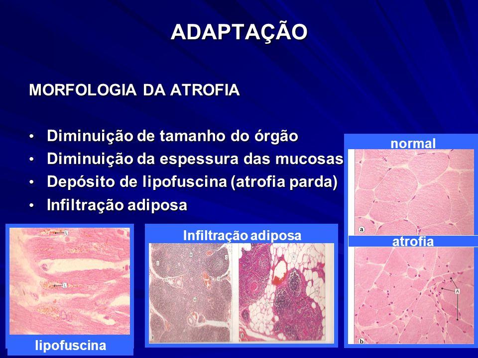 ADAPTAÇÃO MORFOLOGIA DA ATROFIA Diminuição de tamanho do órgão Diminuição de tamanho do órgão Diminuição da espessura das mucosas Diminuição da espess