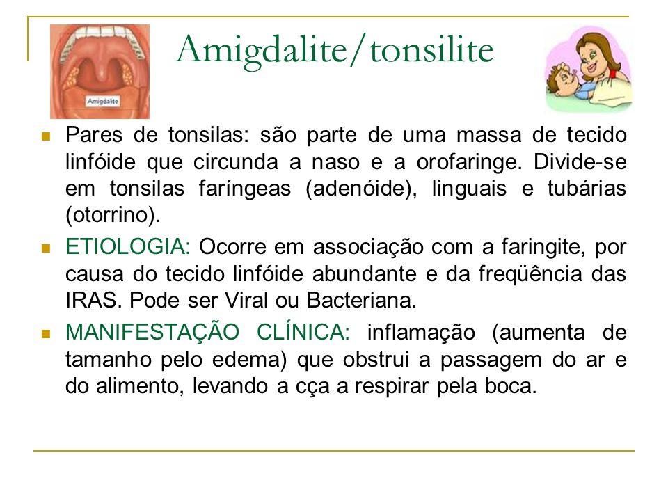 Amigdalite/tonsilite Pares de tonsilas: são parte de uma massa de tecido linfóide que circunda a naso e a orofaringe. Divide-se em tonsilas faríngeas
