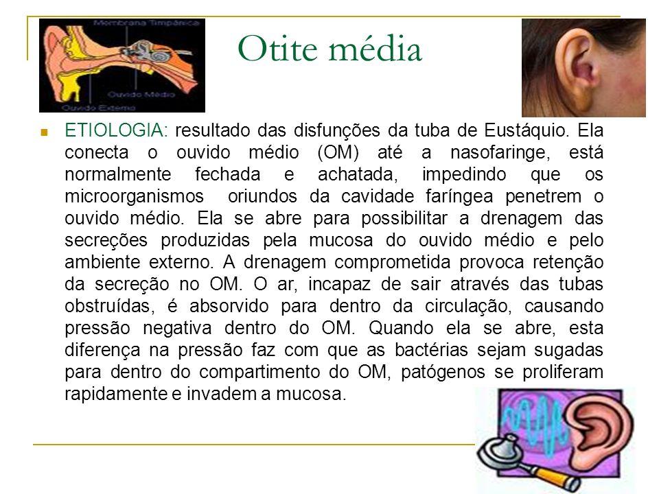 Otite média ETIOLOGIA: resultado das disfunções da tuba de Eustáquio. Ela conecta o ouvido médio (OM) até a nasofaringe, está normalmente fechada e ac