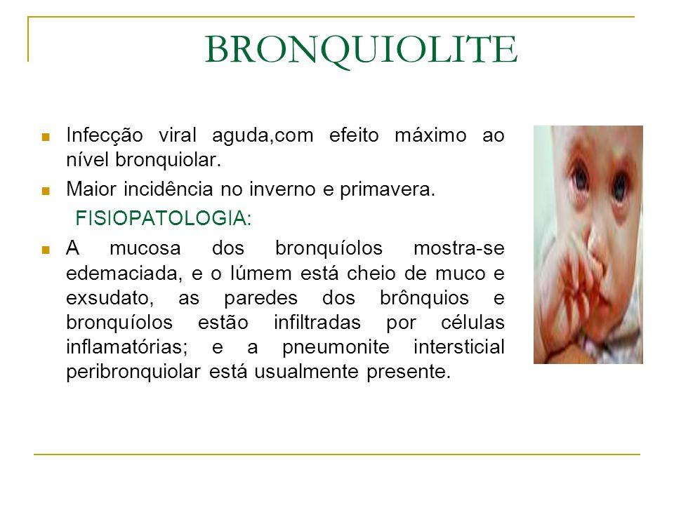 BRONQUIOLITE Infecção viral aguda,com efeito máximo ao nível bronquiolar. Maior incidência no inverno e primavera. FISIOPATOLOGIA: A mucosa dos bronqu