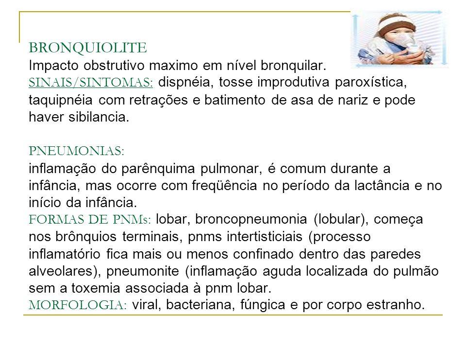 BRONQUIOLITE Impacto obstrutivo maximo em nível bronquilar. SINAIS/SINTOMAS: dispnéia, tosse improdutiva paroxística, taquipnéia com retrações e batim