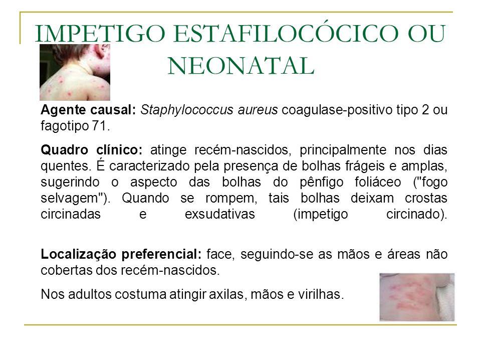 IMPETIGO ESTAFILOCÓCICO OU NEONATAL Agente causal: Staphylococcus aureus coagulase-positivo tipo 2 ou fagotipo 71. Quadro clínico: atinge recém-nascid