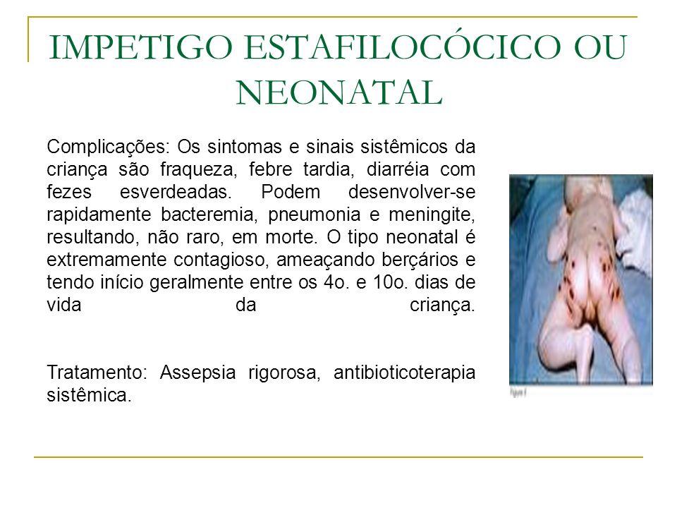 IMPETIGO ESTAFILOCÓCICO OU NEONATAL Complicações: Os sintomas e sinais sistêmicos da criança são fraqueza, febre tardia, diarréia com fezes esverdeada