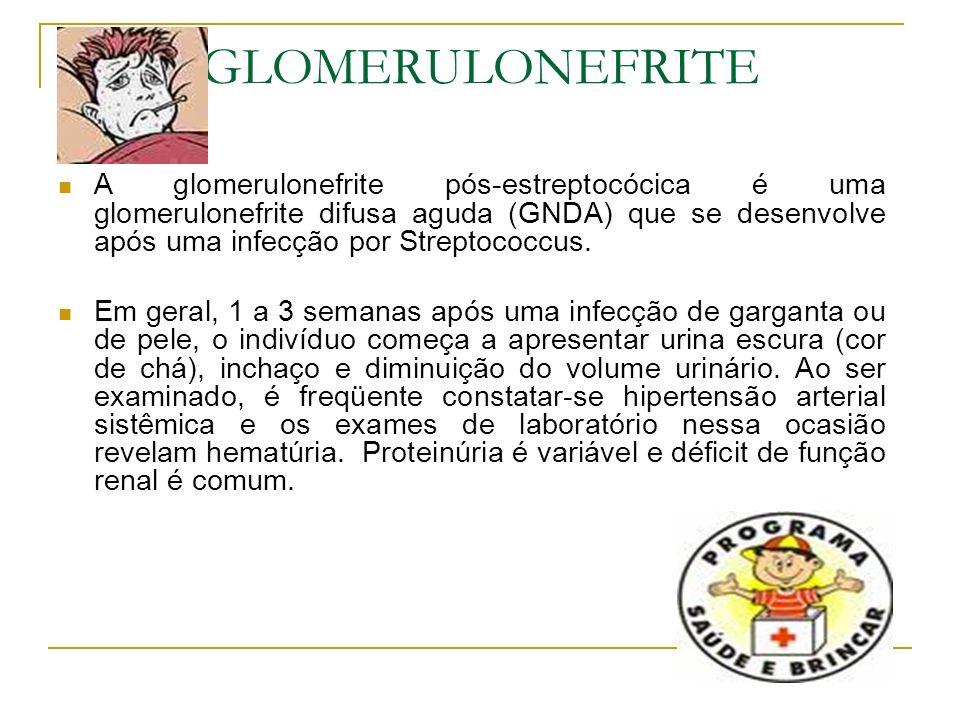 GLOMERULONEFRITE A glomerulonefrite pós-estreptocócica é uma glomerulonefrite difusa aguda (GNDA) que se desenvolve após uma infecção por Streptococcu