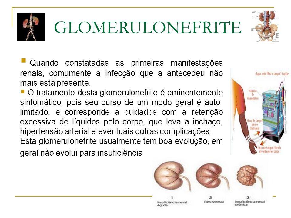 Quando constatadas as primeiras manifestações renais, comumente a infecção que a antecedeu não mais está presente. O tratamento desta glomerulonefrite
