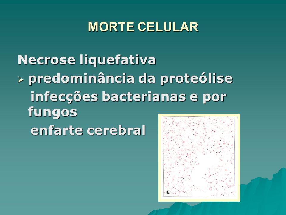 MORTE CELULAR Necrose liquefativa predominância da proteólise predominância da proteólise infecções bacterianas e por fungos infecções bacterianas e p