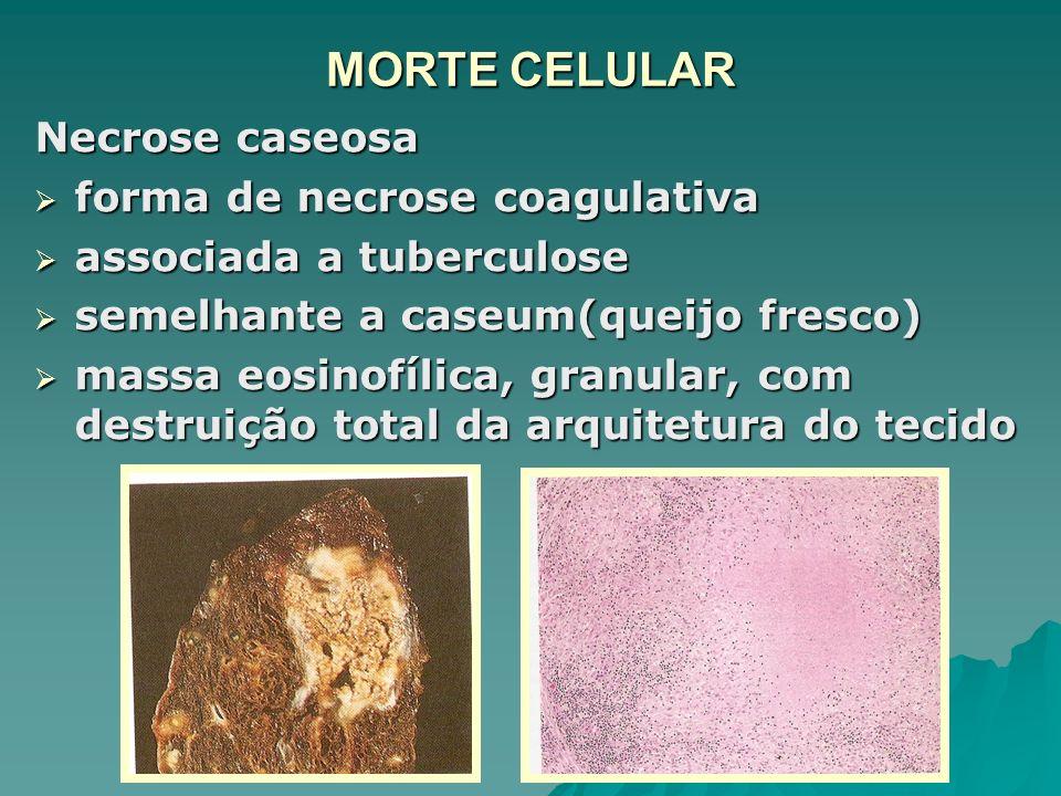 MORTE CELULAR Necrose caseosa forma de necrose coagulativa forma de necrose coagulativa associada a tuberculose associada a tuberculose semelhante a c