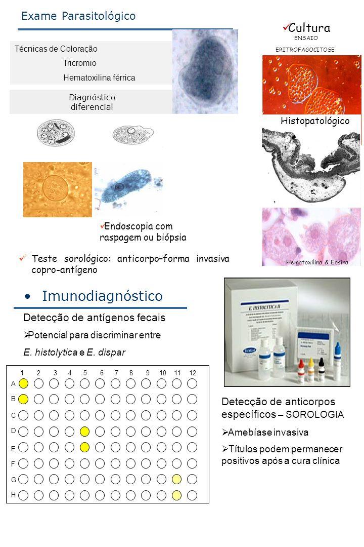 Técnicas de Coloração Tricromio Hematoxilina férrica Exame Parasitológico Diagnóstico diferencial Cultura ENSAIO ERITROFAGOCITOSE Histopatológico Hema