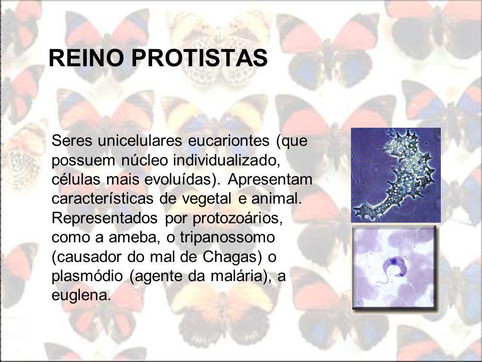 REINO PROTISTAS Seres unicelulares eucariontes (que possuem núcleo individualizado, células mais evoluídas). Apresentam características de vegetal e a