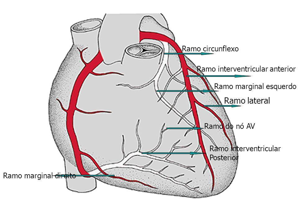 Ramo marginal direito Ramo interventricular anterior Ramo lateral Ramo circunflexo Ramo interventricular Posterior Ramo do nó AV Ramo marginal esquerd