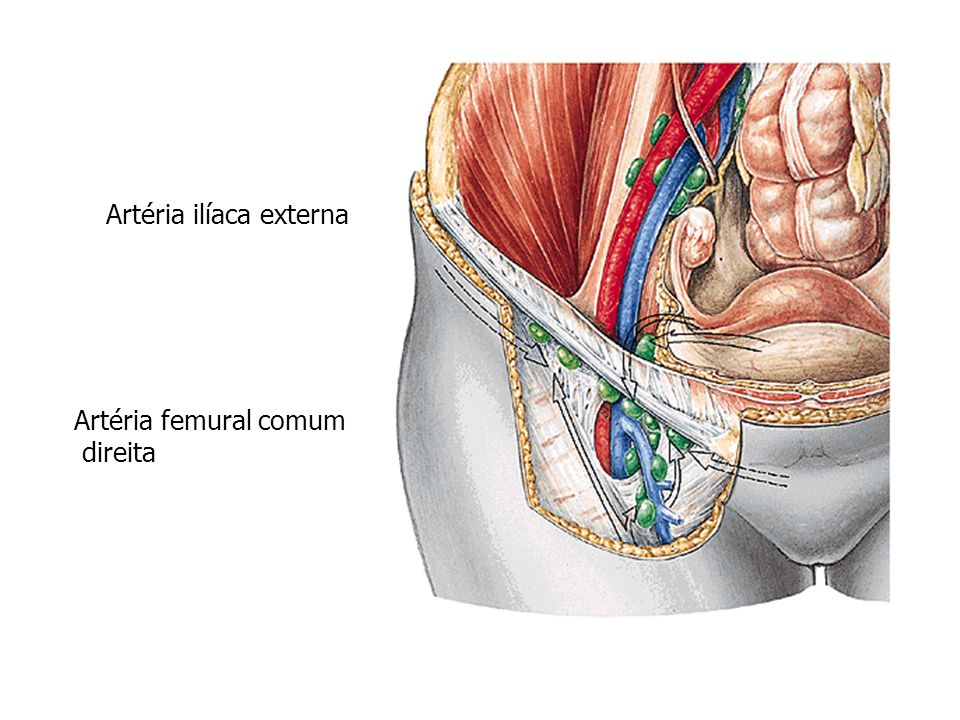 Artéria ilíaca externa Artéria femural comum direita