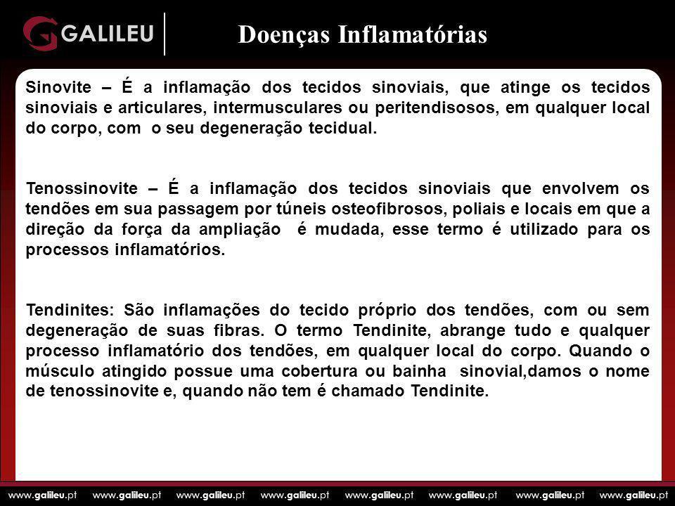 www. galileu.pt www. galileu.pt www. galileu.pt www. galileu.pt Doenças Inflamatórias Sinovite – É a inflamação dos tecidos sinoviais, que atinge os t