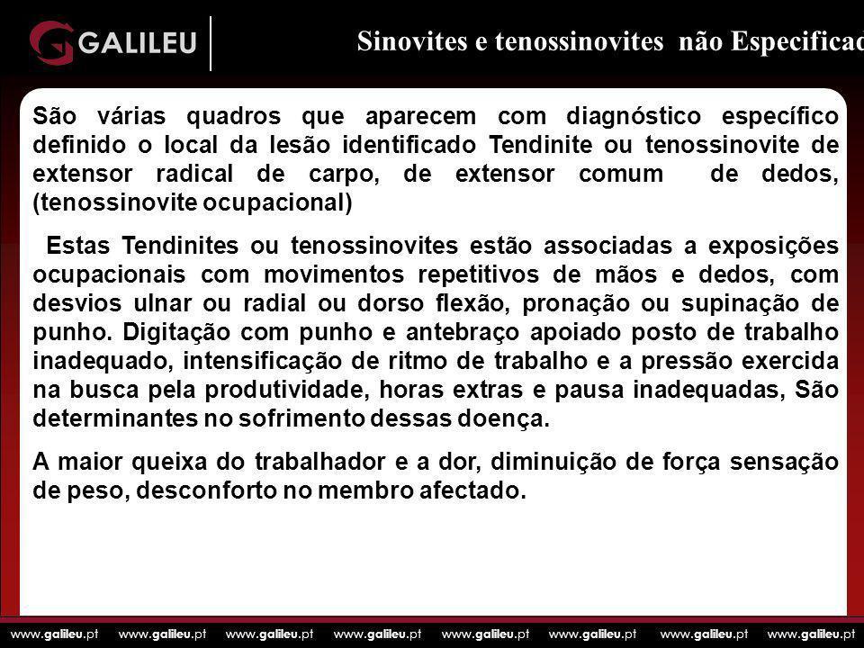 www. galileu.pt www. galileu.pt www. galileu.pt www. galileu.pt Sinovites e tenossinovites não Especificadas: São várias quadros que aparecem com diag