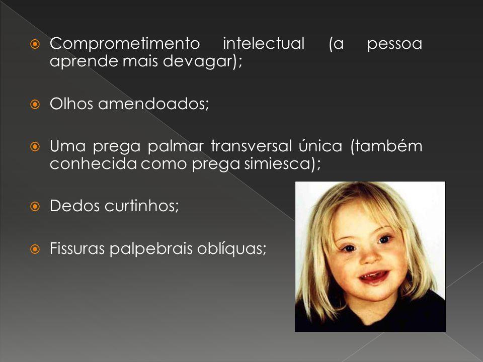 Comprometimento intelectual (a pessoa aprende mais devagar); Olhos amendoados; Uma prega palmar transversal única (também conhecida como prega simiesc
